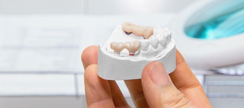 Conheça os mitos e verdades sobre implantes dentários